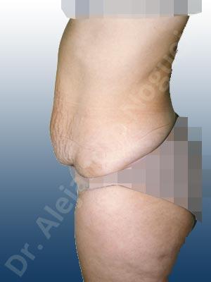 Abdomen con debilidad muscular,Abdomen descolgado,Abdominoplastia estándar