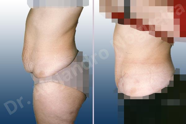 Abdomen con debilidad muscular,Abdomen descolgado,Abdominoplastia estándar - photo 1
