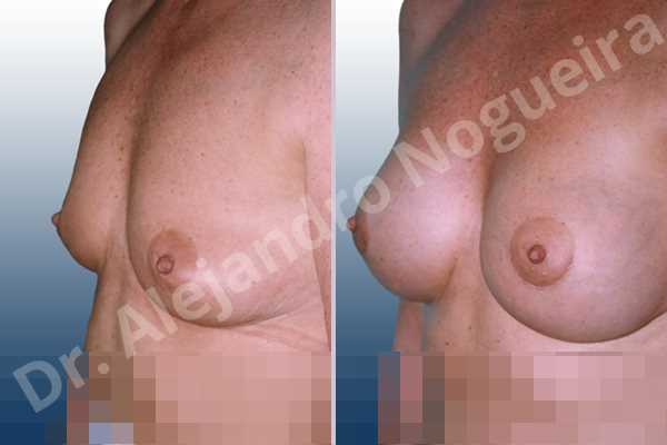 Pechos vacíos,Pechos ligeramente caídos descolgados,Pechos pequeños,Forma anatómica,Incisión hemiperiareolar inferior,Bolsillo en plano subfascial - photo 2