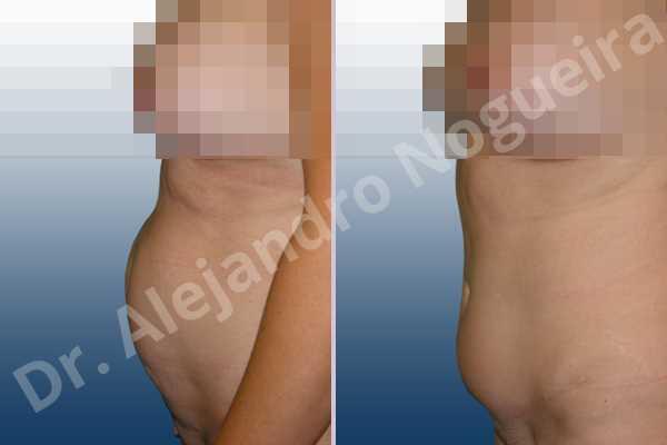 Abdomen descolgado,Cicatrices hundidas,Abdomen con debilidad muscular,Abdominoplastia estándar - photo 2