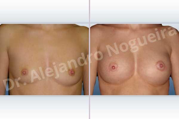 Pechos asimétricos,Mamas delgadas,Pechos pequeños,Forma anatómica,Incisión hemiperiareolar inferior,Bolsillo en plano subfascial - photo 1