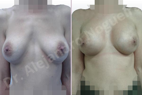 Deformidad en mama dinámica de implantes mamarios,Calcificación de la cápsula de los implantes mamarios,Malposición de implantes mamarios desplazados,Deformidad en doble burbuja de implantes mamarios,Movimiento excesivo de implantes mamarios,Deslizamiento lateral de implantes mamarios,Implantes mamarios excesivamente laterales,Visibilidad palpabilidad de implantes mamarios,Implantes mamarios rotos,Implantes mamarios bizcos,Pechos vacíos,Areolas grandes,Pechos laterales,Pechos moderadamente caídos descolgados,Pechos estrechos,Tórax prominente,Mamas delgadas,Pechos pequeños,Escote ancho de implantes de pechos excesivamente separados,Escote ancho de pechos excesivamente separados,Implantes mamarios demasiado estrechos,Pechos tuberosos,Efecto en cascada de agua de implantes mamarios,Forma anatómica,Reducción areolar,Capsulectomía,Incisión circumareolar,Capsulorrafia sujetador interno,Bolsillo en plano subfascial,Mamoplastia tuberosa - photo 1