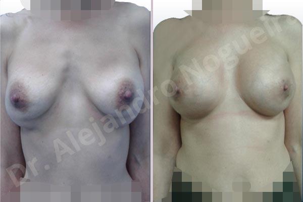 Deformidad en mama dinámica de implantes mamarios,Calcificación de la cápsula de los implantes mamarios,Malposición de implantes mamarios desplazados,Deformidad en doble burbuja de implantes mamarios,Movimiento excesivo de implantes mamarios,Deslizamiento lateral de implantes mamarios,Implantes mamarios excesivamente laterales,Visibilidad palpabilidad de implantes mamarios,Implantes mamarios rotos,Implantes mamarios bizcos,Pechos vacíos,Areolas grandes,Pechos laterales,Pechos moderadamente caídos descolgados,Pechos estrechos,Tórax prominente,Mamas delgadas,Pechos pequeños,Escote ancho de implantes de pechos excesivamente separados,Escote ancho de pechos excesivamente separados,Implantes mamarios demasiado estrechos,Pechos tuberosos,Efecto en cascada de agua de implantes mamarios,Forma anatómica,Reducción areolar,Capsulectomía,Incisión circumareolar,Capsulorrafia sujetador interno,Bolsillo en plano subfascial,Mamoplastia tuberosa - photo 2