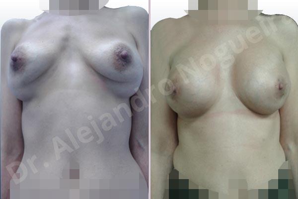 Deformidad en mama dinámica de implantes mamarios,Calcificación de la cápsula de los implantes mamarios,Malposición de implantes mamarios desplazados,Deformidad en doble burbuja de implantes mamarios,Movimiento excesivo de implantes mamarios,Deslizamiento lateral de implantes mamarios,Implantes mamarios excesivamente laterales,Visibilidad palpabilidad de implantes mamarios,Implantes mamarios rotos,Implantes mamarios bizcos,Pechos vacíos,Areolas grandes,Pechos laterales,Pechos moderadamente caídos descolgados,Pechos estrechos,Tórax prominente,Mamas delgadas,Pechos pequeños,Escote ancho de implantes de pechos excesivamente separados,Escote ancho de pechos excesivamente separados,Implantes mamarios demasiado estrechos,Pechos tuberosos,Efecto en cascada de agua de implantes mamarios,Forma anatómica,Reducción areolar,Capsulectomía,Incisión circumareolar,Capsulorrafia sujetador interno,Bolsillo en plano subfascial,Mamoplastia tuberosa - photo 3