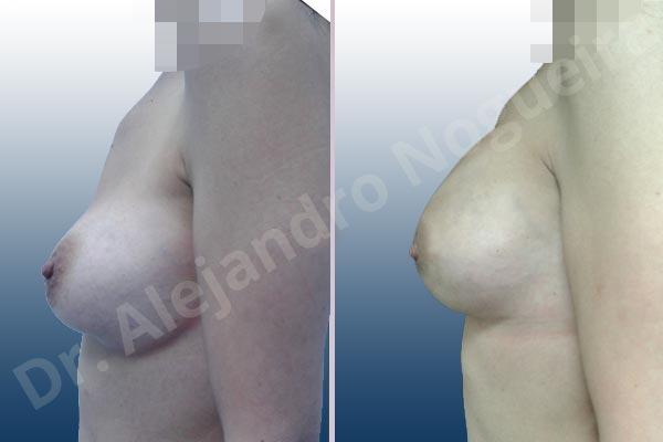 Deformidad en mama dinámica de implantes mamarios,Calcificación de la cápsula de los implantes mamarios,Malposición de implantes mamarios desplazados,Deformidad en doble burbuja de implantes mamarios,Movimiento excesivo de implantes mamarios,Deslizamiento lateral de implantes mamarios,Implantes mamarios excesivamente laterales,Visibilidad palpabilidad de implantes mamarios,Implantes mamarios rotos,Implantes mamarios bizcos,Pechos vacíos,Areolas grandes,Pechos laterales,Pechos moderadamente caídos descolgados,Pechos estrechos,Tórax prominente,Mamas delgadas,Pechos pequeños,Escote ancho de implantes de pechos excesivamente separados,Escote ancho de pechos excesivamente separados,Implantes mamarios demasiado estrechos,Pechos tuberosos,Efecto en cascada de agua de implantes mamarios,Forma anatómica,Reducción areolar,Capsulectomía,Incisión circumareolar,Capsulorrafia sujetador interno,Bolsillo en plano subfascial,Mamoplastia tuberosa - photo 4
