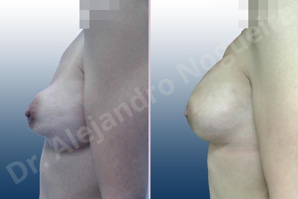 Deformidad en mama dinámica de implantes mamarios,Calcificación de la cápsula de los implantes mamarios,Malposición de implantes mamarios desplazados,Deformidad en doble burbuja de implantes mamarios,Movimiento excesivo de implantes mamarios,Deslizamiento lateral de implantes mamarios,Implantes mamarios excesivamente laterales,Visibilidad palpabilidad de implantes mamarios,Implantes mamarios rotos,Implantes mamarios bizcos,Pechos vacíos,Areolas grandes,Pechos laterales,Pechos moderadamente caídos descolgados,Pechos estrechos,Tórax prominente,Mamas delgadas,Pechos pequeños,Escote ancho de implantes de pechos excesivamente separados,Escote ancho de pechos excesivamente separados,Implantes mamarios demasiado estrechos,Pechos tuberosos,Efecto en cascada de agua de implantes mamarios,Forma anatómica,Reducción areolar,Capsulectomía,Incisión circumareolar,Capsulorrafia sujetador interno,Bolsillo en plano subfascial,Mamoplastia tuberosa - photo 5