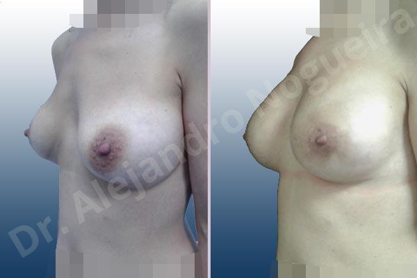 Deformidad en mama dinámica de implantes mamarios,Calcificación de la cápsula de los implantes mamarios,Malposición de implantes mamarios desplazados,Deformidad en doble burbuja de implantes mamarios,Movimiento excesivo de implantes mamarios,Deslizamiento lateral de implantes mamarios,Implantes mamarios excesivamente laterales,Visibilidad palpabilidad de implantes mamarios,Implantes mamarios rotos,Implantes mamarios bizcos,Pechos vacíos,Areolas grandes,Pechos laterales,Pechos moderadamente caídos descolgados,Pechos estrechos,Tórax prominente,Mamas delgadas,Pechos pequeños,Escote ancho de implantes de pechos excesivamente separados,Escote ancho de pechos excesivamente separados,Implantes mamarios demasiado estrechos,Pechos tuberosos,Efecto en cascada de agua de implantes mamarios,Forma anatómica,Reducción areolar,Capsulectomía,Incisión circumareolar,Capsulorrafia sujetador interno,Bolsillo en plano subfascial,Mamoplastia tuberosa - photo 6