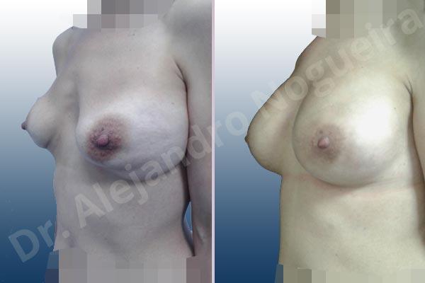 Deformidad en mama dinámica de implantes mamarios,Calcificación de la cápsula de los implantes mamarios,Malposición de implantes mamarios desplazados,Deformidad en doble burbuja de implantes mamarios,Movimiento excesivo de implantes mamarios,Deslizamiento lateral de implantes mamarios,Implantes mamarios excesivamente laterales,Visibilidad palpabilidad de implantes mamarios,Implantes mamarios rotos,Implantes mamarios bizcos,Pechos vacíos,Areolas grandes,Pechos laterales,Pechos moderadamente caídos descolgados,Pechos estrechos,Tórax prominente,Mamas delgadas,Pechos pequeños,Escote ancho de implantes de pechos excesivamente separados,Escote ancho de pechos excesivamente separados,Implantes mamarios demasiado estrechos,Pechos tuberosos,Efecto en cascada de agua de implantes mamarios,Forma anatómica,Reducción areolar,Capsulectomía,Incisión circumareolar,Capsulorrafia sujetador interno,Bolsillo en plano subfascial,Mamoplastia tuberosa - photo 7