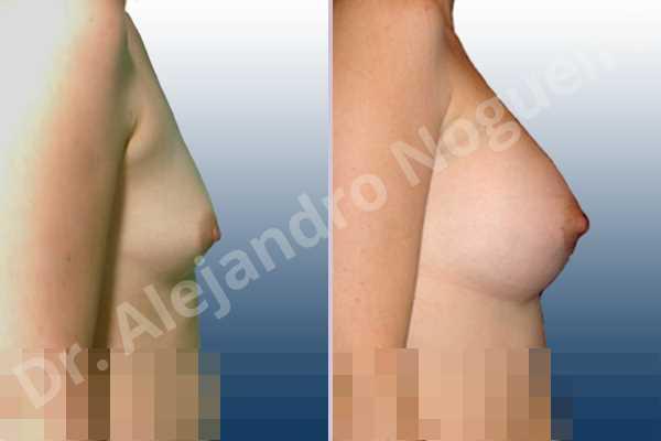 Pechos asimétricos,Pechos bizcos,Pechos pequeños,Forma anatómica,Incisión hemiperiareolar inferior,Bolsillo en plano subfascial - photo 4