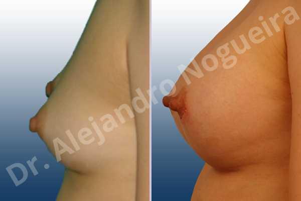 Pechos estrechos,Mamas delgadas,Forma anatómica,Incisión hemiperiareolar inferior,Bolsillo en plano subfascial - photo 2