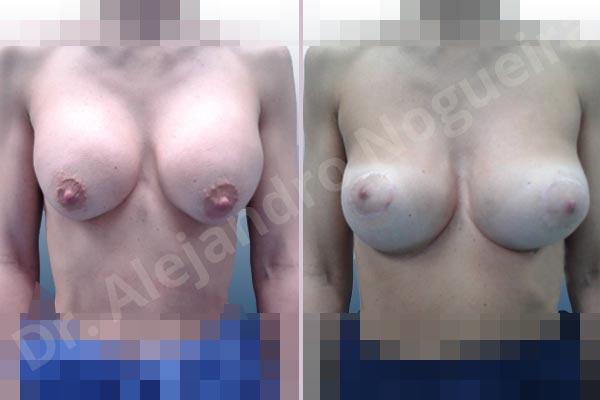 Pechos asimétricos,Deformidad en mama dinámica de implantes mamarios,Pseudoptosis por bottoming out o desfondamiento de implantes mamarios,Contractura capsular de implantes mamarios,Calcificación de la cápsula de los implantes mamarios,Malposición de implantes mamarios desplazados,Deformidad en doble burbuja de implantes mamarios,Movimiento excesivo de implantes mamarios,Implantes mamarios excesivamente altos,Implantes mamarios excesivamente laterales,Unimama por sinmastia de implantes mamarios,Visibilidad palpabilidad de implantes mamarios,Implantes mamarios rotos,Implantes mamarios bizcos,Pechos vacíos,Areolas grandes,Pechos levemente caídos descolgados,Mamas delgadas,Pechos pequeños,Efecto en cascada de agua de implantes mamarios,Forma anatómica,Reducción areolar,Capsulectomía,Incisión circumareolar,Tamaño extra grande,Capsulorrafia sujetador interno,Forma redonda,Bolsillo en plano subfascial,Mamoplastia tuberosa - photo 1