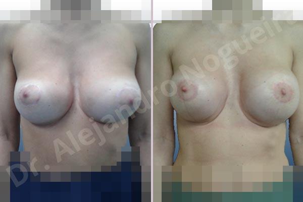 Pechos asimétricos,Deformidad en mama dinámica de implantes mamarios,Pseudoptosis por bottoming out o desfondamiento de implantes mamarios,Contractura capsular de implantes mamarios,Calcificación de la cápsula de los implantes mamarios,Malposición de implantes mamarios desplazados,Deformidad en doble burbuja de implantes mamarios,Movimiento excesivo de implantes mamarios,Implantes mamarios excesivamente altos,Implantes mamarios excesivamente laterales,Unimama por sinmastia de implantes mamarios,Visibilidad palpabilidad de implantes mamarios,Implantes mamarios rotos,Implantes mamarios bizcos,Pechos vacíos,Areolas grandes,Pechos levemente caídos descolgados,Mamas delgadas,Pechos pequeños,Efecto en cascada de agua de implantes mamarios,Forma anatómica,Reducción areolar,Capsulectomía,Incisión circumareolar,Tamaño extra grande,Capsulorrafia sujetador interno,Forma redonda,Bolsillo en plano subfascial,Mamoplastia tuberosa - photo 11