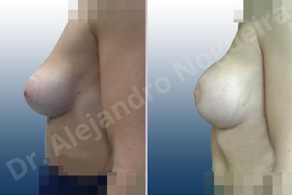 Pechos asimétricos,Deformidad en mama dinámica de implantes mamarios,Pseudoptosis por bottoming out o desfondamiento de implantes mamarios,Contractura capsular de implantes mamarios,Calcificación de la cápsula de los implantes mamarios,Malposición de implantes mamarios desplazados,Deformidad en doble burbuja de implantes mamarios,Movimiento excesivo de implantes mamarios,Implantes mamarios excesivamente altos,Implantes mamarios excesivamente laterales,Unimama por sinmastia de implantes mamarios,Visibilidad palpabilidad de implantes mamarios,Implantes mamarios rotos,Implantes mamarios bizcos,Pechos vacíos,Areolas grandes,Pechos levemente caídos descolgados,Mamas delgadas,Pechos pequeños,Efecto en cascada de agua de implantes mamarios,Forma anatómica,Reducción areolar,Capsulectomía,Incisión circumareolar,Tamaño extra grande,Capsulorrafia sujetador interno,Forma redonda,Bolsillo en plano subfascial,Mamoplastia tuberosa - photo 12