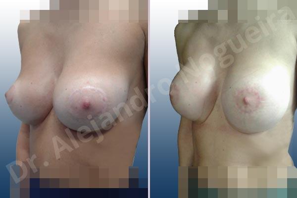 Pechos asimétricos,Deformidad en mama dinámica de implantes mamarios,Pseudoptosis por bottoming out o desfondamiento de implantes mamarios,Contractura capsular de implantes mamarios,Calcificación de la cápsula de los implantes mamarios,Malposición de implantes mamarios desplazados,Deformidad en doble burbuja de implantes mamarios,Movimiento excesivo de implantes mamarios,Implantes mamarios excesivamente altos,Implantes mamarios excesivamente laterales,Unimama por sinmastia de implantes mamarios,Visibilidad palpabilidad de implantes mamarios,Implantes mamarios rotos,Implantes mamarios bizcos,Pechos vacíos,Areolas grandes,Pechos levemente caídos descolgados,Mamas delgadas,Pechos pequeños,Efecto en cascada de agua de implantes mamarios,Forma anatómica,Reducción areolar,Capsulectomía,Incisión circumareolar,Tamaño extra grande,Capsulorrafia sujetador interno,Forma redonda,Bolsillo en plano subfascial,Mamoplastia tuberosa - photo 13