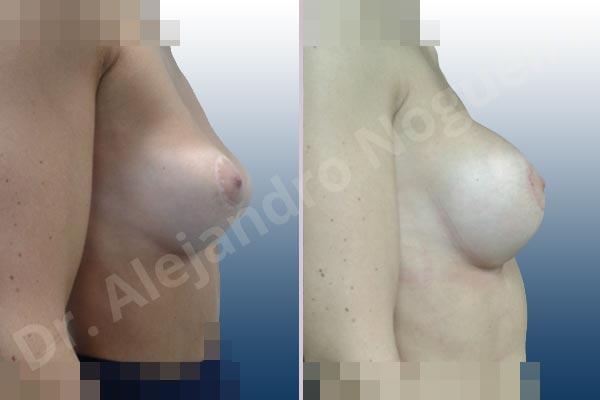 Pechos asimétricos,Deformidad en mama dinámica de implantes mamarios,Pseudoptosis por bottoming out o desfondamiento de implantes mamarios,Contractura capsular de implantes mamarios,Calcificación de la cápsula de los implantes mamarios,Malposición de implantes mamarios desplazados,Deformidad en doble burbuja de implantes mamarios,Movimiento excesivo de implantes mamarios,Implantes mamarios excesivamente altos,Implantes mamarios excesivamente laterales,Unimama por sinmastia de implantes mamarios,Visibilidad palpabilidad de implantes mamarios,Implantes mamarios rotos,Implantes mamarios bizcos,Pechos vacíos,Areolas grandes,Pechos levemente caídos descolgados,Mamas delgadas,Pechos pequeños,Efecto en cascada de agua de implantes mamarios,Forma anatómica,Reducción areolar,Capsulectomía,Incisión circumareolar,Tamaño extra grande,Capsulorrafia sujetador interno,Forma redonda,Bolsillo en plano subfascial,Mamoplastia tuberosa - photo 14