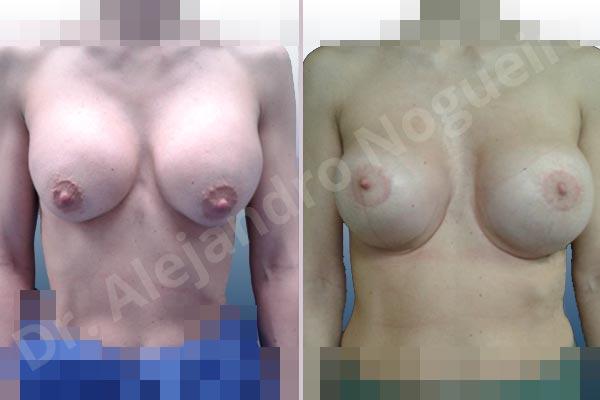 Pechos asimétricos,Deformidad en mama dinámica de implantes mamarios,Pseudoptosis por bottoming out o desfondamiento de implantes mamarios,Contractura capsular de implantes mamarios,Calcificación de la cápsula de los implantes mamarios,Malposición de implantes mamarios desplazados,Deformidad en doble burbuja de implantes mamarios,Movimiento excesivo de implantes mamarios,Implantes mamarios excesivamente altos,Implantes mamarios excesivamente laterales,Unimama por sinmastia de implantes mamarios,Visibilidad palpabilidad de implantes mamarios,Implantes mamarios rotos,Implantes mamarios bizcos,Pechos vacíos,Areolas grandes,Pechos levemente caídos descolgados,Mamas delgadas,Pechos pequeños,Efecto en cascada de agua de implantes mamarios,Forma anatómica,Reducción areolar,Capsulectomía,Incisión circumareolar,Tamaño extra grande,Capsulorrafia sujetador interno,Forma redonda,Bolsillo en plano subfascial,Mamoplastia tuberosa - photo 16