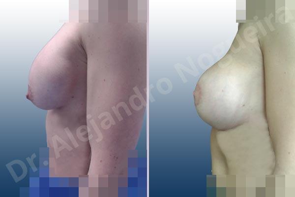 Pechos asimétricos,Deformidad en mama dinámica de implantes mamarios,Pseudoptosis por bottoming out o desfondamiento de implantes mamarios,Contractura capsular de implantes mamarios,Calcificación de la cápsula de los implantes mamarios,Malposición de implantes mamarios desplazados,Deformidad en doble burbuja de implantes mamarios,Movimiento excesivo de implantes mamarios,Implantes mamarios excesivamente altos,Implantes mamarios excesivamente laterales,Unimama por sinmastia de implantes mamarios,Visibilidad palpabilidad de implantes mamarios,Implantes mamarios rotos,Implantes mamarios bizcos,Pechos vacíos,Areolas grandes,Pechos levemente caídos descolgados,Mamas delgadas,Pechos pequeños,Efecto en cascada de agua de implantes mamarios,Forma anatómica,Reducción areolar,Capsulectomía,Incisión circumareolar,Tamaño extra grande,Capsulorrafia sujetador interno,Forma redonda,Bolsillo en plano subfascial,Mamoplastia tuberosa - photo 18