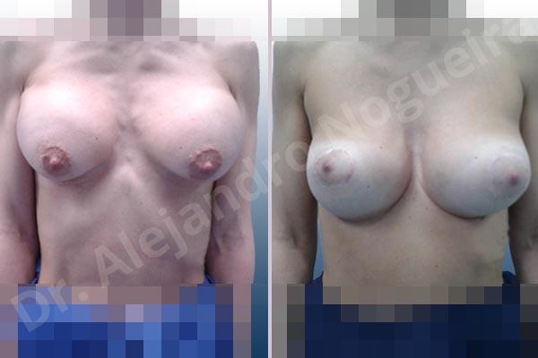 Pechos asimétricos,Deformidad en mama dinámica de implantes mamarios,Pseudoptosis por bottoming out o desfondamiento de implantes mamarios,Contractura capsular de implantes mamarios,Calcificación de la cápsula de los implantes mamarios,Malposición de implantes mamarios desplazados,Deformidad en doble burbuja de implantes mamarios,Movimiento excesivo de implantes mamarios,Implantes mamarios excesivamente altos,Implantes mamarios excesivamente laterales,Unimama por sinmastia de implantes mamarios,Visibilidad palpabilidad de implantes mamarios,Implantes mamarios rotos,Implantes mamarios bizcos,Pechos vacíos,Areolas grandes,Pechos levemente caídos descolgados,Mamas delgadas,Pechos pequeños,Efecto en cascada de agua de implantes mamarios,Forma anatómica,Reducción areolar,Capsulectomía,Incisión circumareolar,Tamaño extra grande,Capsulorrafia sujetador interno,Forma redonda,Bolsillo en plano subfascial,Mamoplastia tuberosa - photo 2