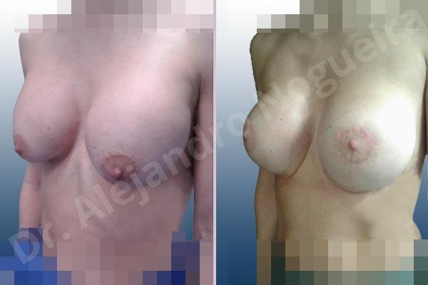 Pechos asimétricos,Deformidad en mama dinámica de implantes mamarios,Pseudoptosis por bottoming out o desfondamiento de implantes mamarios,Contractura capsular de implantes mamarios,Calcificación de la cápsula de los implantes mamarios,Malposición de implantes mamarios desplazados,Deformidad en doble burbuja de implantes mamarios,Movimiento excesivo de implantes mamarios,Implantes mamarios excesivamente altos,Implantes mamarios excesivamente laterales,Unimama por sinmastia de implantes mamarios,Visibilidad palpabilidad de implantes mamarios,Implantes mamarios rotos,Implantes mamarios bizcos,Pechos vacíos,Areolas grandes,Pechos levemente caídos descolgados,Mamas delgadas,Pechos pequeños,Efecto en cascada de agua de implantes mamarios,Forma anatómica,Reducción areolar,Capsulectomía,Incisión circumareolar,Tamaño extra grande,Capsulorrafia sujetador interno,Forma redonda,Bolsillo en plano subfascial,Mamoplastia tuberosa - photo 20