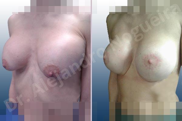Pechos asimétricos,Deformidad en mama dinámica de implantes mamarios,Pseudoptosis por bottoming out o desfondamiento de implantes mamarios,Contractura capsular de implantes mamarios,Calcificación de la cápsula de los implantes mamarios,Malposición de implantes mamarios desplazados,Deformidad en doble burbuja de implantes mamarios,Movimiento excesivo de implantes mamarios,Implantes mamarios excesivamente altos,Implantes mamarios excesivamente laterales,Unimama por sinmastia de implantes mamarios,Visibilidad palpabilidad de implantes mamarios,Implantes mamarios rotos,Implantes mamarios bizcos,Pechos vacíos,Areolas grandes,Pechos levemente caídos descolgados,Mamas delgadas,Pechos pequeños,Efecto en cascada de agua de implantes mamarios,Forma anatómica,Reducción areolar,Capsulectomía,Incisión circumareolar,Tamaño extra grande,Capsulorrafia sujetador interno,Forma redonda,Bolsillo en plano subfascial,Mamoplastia tuberosa - photo 21