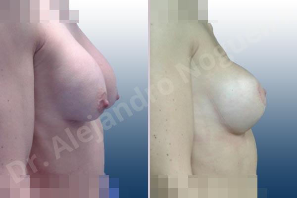 Pechos asimétricos,Deformidad en mama dinámica de implantes mamarios,Pseudoptosis por bottoming out o desfondamiento de implantes mamarios,Contractura capsular de implantes mamarios,Calcificación de la cápsula de los implantes mamarios,Malposición de implantes mamarios desplazados,Deformidad en doble burbuja de implantes mamarios,Movimiento excesivo de implantes mamarios,Implantes mamarios excesivamente altos,Implantes mamarios excesivamente laterales,Unimama por sinmastia de implantes mamarios,Visibilidad palpabilidad de implantes mamarios,Implantes mamarios rotos,Implantes mamarios bizcos,Pechos vacíos,Areolas grandes,Pechos levemente caídos descolgados,Mamas delgadas,Pechos pequeños,Efecto en cascada de agua de implantes mamarios,Forma anatómica,Reducción areolar,Capsulectomía,Incisión circumareolar,Tamaño extra grande,Capsulorrafia sujetador interno,Forma redonda,Bolsillo en plano subfascial,Mamoplastia tuberosa - photo 22