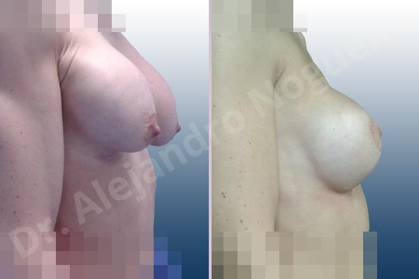 Pechos asimétricos,Deformidad en mama dinámica de implantes mamarios,Pseudoptosis por bottoming out o desfondamiento de implantes mamarios,Contractura capsular de implantes mamarios,Calcificación de la cápsula de los implantes mamarios,Malposición de implantes mamarios desplazados,Deformidad en doble burbuja de implantes mamarios,Movimiento excesivo de implantes mamarios,Implantes mamarios excesivamente altos,Implantes mamarios excesivamente laterales,Unimama por sinmastia de implantes mamarios,Visibilidad palpabilidad de implantes mamarios,Implantes mamarios rotos,Implantes mamarios bizcos,Pechos vacíos,Areolas grandes,Pechos levemente caídos descolgados,Mamas delgadas,Pechos pequeños,Efecto en cascada de agua de implantes mamarios,Forma anatómica,Reducción areolar,Capsulectomía,Incisión circumareolar,Tamaño extra grande,Capsulorrafia sujetador interno,Forma redonda,Bolsillo en plano subfascial,Mamoplastia tuberosa - photo 23