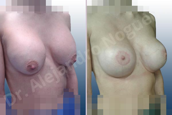 Pechos asimétricos,Deformidad en mama dinámica de implantes mamarios,Pseudoptosis por bottoming out o desfondamiento de implantes mamarios,Contractura capsular de implantes mamarios,Calcificación de la cápsula de los implantes mamarios,Malposición de implantes mamarios desplazados,Deformidad en doble burbuja de implantes mamarios,Movimiento excesivo de implantes mamarios,Implantes mamarios excesivamente altos,Implantes mamarios excesivamente laterales,Unimama por sinmastia de implantes mamarios,Visibilidad palpabilidad de implantes mamarios,Implantes mamarios rotos,Implantes mamarios bizcos,Pechos vacíos,Areolas grandes,Pechos levemente caídos descolgados,Mamas delgadas,Pechos pequeños,Efecto en cascada de agua de implantes mamarios,Forma anatómica,Reducción areolar,Capsulectomía,Incisión circumareolar,Tamaño extra grande,Capsulorrafia sujetador interno,Forma redonda,Bolsillo en plano subfascial,Mamoplastia tuberosa - photo 24