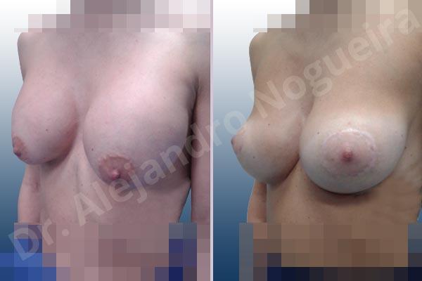 Pechos asimétricos,Deformidad en mama dinámica de implantes mamarios,Pseudoptosis por bottoming out o desfondamiento de implantes mamarios,Contractura capsular de implantes mamarios,Calcificación de la cápsula de los implantes mamarios,Malposición de implantes mamarios desplazados,Deformidad en doble burbuja de implantes mamarios,Movimiento excesivo de implantes mamarios,Implantes mamarios excesivamente altos,Implantes mamarios excesivamente laterales,Unimama por sinmastia de implantes mamarios,Visibilidad palpabilidad de implantes mamarios,Implantes mamarios rotos,Implantes mamarios bizcos,Pechos vacíos,Areolas grandes,Pechos levemente caídos descolgados,Mamas delgadas,Pechos pequeños,Efecto en cascada de agua de implantes mamarios,Forma anatómica,Reducción areolar,Capsulectomía,Incisión circumareolar,Tamaño extra grande,Capsulorrafia sujetador interno,Forma redonda,Bolsillo en plano subfascial,Mamoplastia tuberosa - photo 5