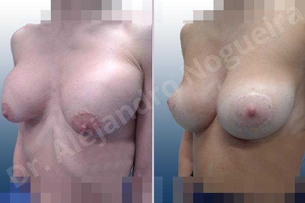 Pechos asimétricos,Deformidad en mama dinámica de implantes mamarios,Pseudoptosis por bottoming out o desfondamiento de implantes mamarios,Contractura capsular de implantes mamarios,Calcificación de la cápsula de los implantes mamarios,Malposición de implantes mamarios desplazados,Deformidad en doble burbuja de implantes mamarios,Movimiento excesivo de implantes mamarios,Implantes mamarios excesivamente altos,Implantes mamarios excesivamente laterales,Unimama por sinmastia de implantes mamarios,Visibilidad palpabilidad de implantes mamarios,Implantes mamarios rotos,Implantes mamarios bizcos,Pechos vacíos,Areolas grandes,Pechos levemente caídos descolgados,Mamas delgadas,Pechos pequeños,Efecto en cascada de agua de implantes mamarios,Forma anatómica,Reducción areolar,Capsulectomía,Incisión circumareolar,Tamaño extra grande,Capsulorrafia sujetador interno,Forma redonda,Bolsillo en plano subfascial,Mamoplastia tuberosa - photo 6