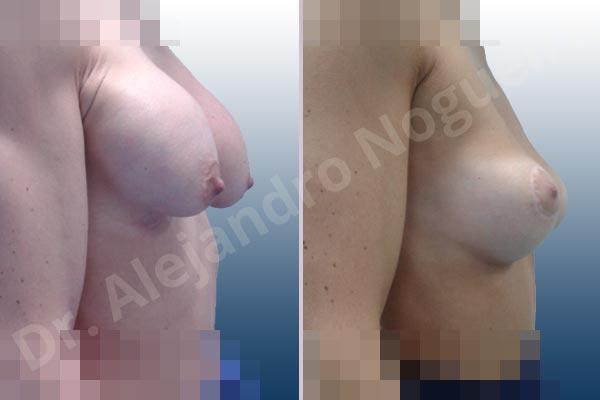 Pechos asimétricos,Deformidad en mama dinámica de implantes mamarios,Pseudoptosis por bottoming out o desfondamiento de implantes mamarios,Contractura capsular de implantes mamarios,Calcificación de la cápsula de los implantes mamarios,Malposición de implantes mamarios desplazados,Deformidad en doble burbuja de implantes mamarios,Movimiento excesivo de implantes mamarios,Implantes mamarios excesivamente altos,Implantes mamarios excesivamente laterales,Unimama por sinmastia de implantes mamarios,Visibilidad palpabilidad de implantes mamarios,Implantes mamarios rotos,Implantes mamarios bizcos,Pechos vacíos,Areolas grandes,Pechos levemente caídos descolgados,Mamas delgadas,Pechos pequeños,Efecto en cascada de agua de implantes mamarios,Forma anatómica,Reducción areolar,Capsulectomía,Incisión circumareolar,Tamaño extra grande,Capsulorrafia sujetador interno,Forma redonda,Bolsillo en plano subfascial,Mamoplastia tuberosa - photo 8