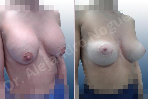 Pechos asimétricos,Deformidad en mama dinámica de implantes mamarios,Pseudoptosis por bottoming out o desfondamiento de implantes mamarios,Contractura capsular de implantes mamarios,Calcificación de la cápsula de los implantes mamarios,Malposición de implantes mamarios desplazados,Deformidad en doble burbuja de implantes mamarios,Movimiento excesivo de implantes mamarios,Implantes mamarios excesivamente altos,Implantes mamarios excesivamente laterales,Unimama por sinmastia de implantes mamarios,Visibilidad palpabilidad de implantes mamarios,Implantes mamarios rotos,Implantes mamarios bizcos,Pechos vacíos,Areolas grandes,Pechos levemente caídos descolgados,Mamas delgadas,Pechos pequeños,Efecto en cascada de agua de implantes mamarios,Forma anatómica,Reducción areolar,Capsulectomía,Incisión circumareolar,Tamaño extra grande,Capsulorrafia sujetador interno,Forma redonda,Bolsillo en plano subfascial,Mamoplastia tuberosa - photo 9