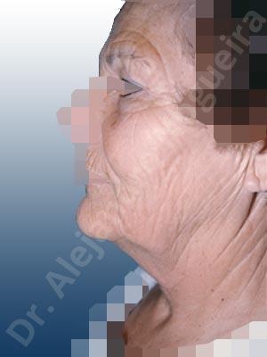 Párpados inferiores abultados,Párpados superiores abultados,Surcos nasogenianos profundos,Papada,Mejillas caídas,Cara caída,Caída del perfil mandibular,Cuello caído,Párpados superiores descolgados ,Lifting de la cara y el cuello en plano profundo de SMAS platisma,Resección de bolsas grasas en el párpado inferior,Incisión vía transconjuntival,Resección de bolsas grasas en el párpado superior,Resección cutánea y muscular de párpado superior