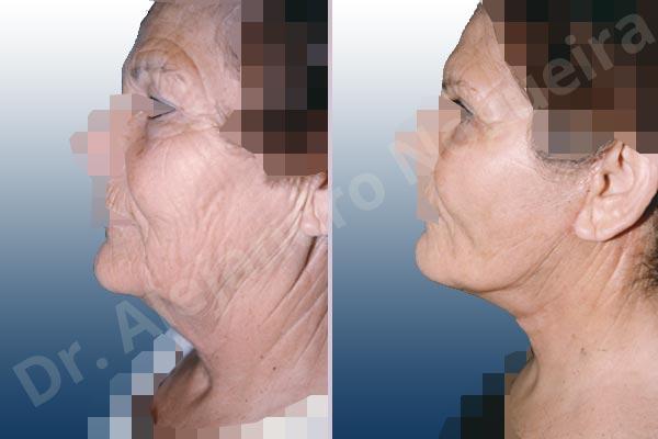 Párpados inferiores abultados,Párpados superiores abultados,Surcos nasogenianos profundos,Papada,Mejillas caídas,Cara caída,Caída del perfil mandibular,Cuello caído,Párpados superiores descolgados ,Lifting de la cara y el cuello en plano profundo de SMAS platisma,Resección de bolsas grasas en el párpado inferior,Incisión vía transconjuntival,Resección de bolsas grasas en el párpado superior,Resección cutánea y muscular de párpado superior - photo 1