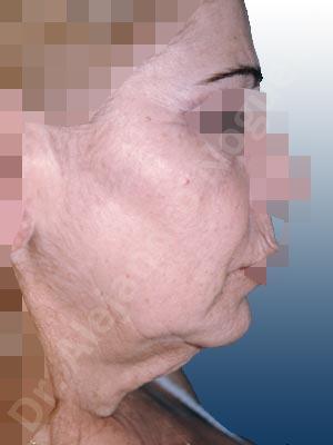 Surcos nasogenianos profundos,Mejillas caídas,Cara caída,Caída del perfil mandibular,Cuello caído,Lifting de la cara y el cuello en plano profundo de SMAS platisma