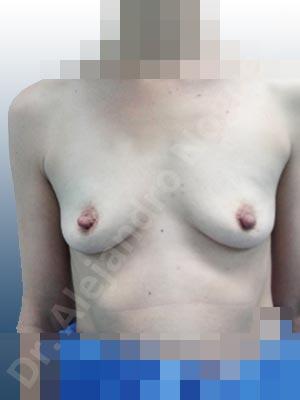 Pechos vacíos,Pechos ligeramente caídos descolgados,Pechos pequeños,Forma anatómica,Incisión hemiperiareolar inferior,Bolsillo en plano subfascial