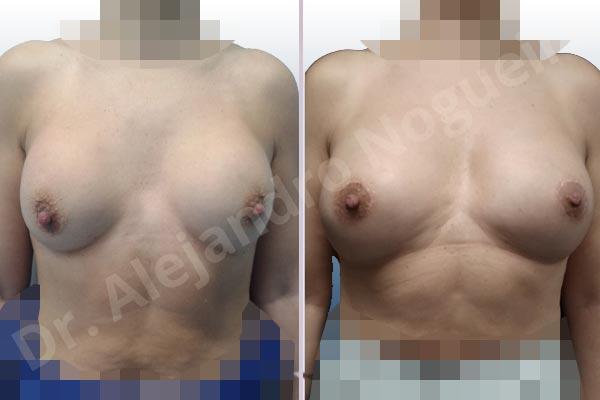 Contractura capsular de implantes mamarios,Calcificación de la cápsula de los implantes mamarios,Malposición de implantes mamarios desplazados,Implantes mamarios excesivamente altos,Visibilidad palpabilidad de implantes mamarios,Implantes mamarios rotos,Pechos bizcos,Implantes mamarios bizcos,Pechos vacíos,Pechos laterales,Pechos pequeños,Escote ancho de implantes de pechos excesivamente separados,Escote ancho de pechos excesivamente separados,Implantes mamarios demasiado estrechos,Forma anatómica,Capsulectomía,Incisión circumareolar,Bolsillo en plano subfascial - photo 1