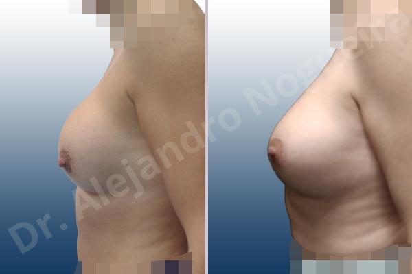 Contractura capsular de implantes mamarios,Calcificación de la cápsula de los implantes mamarios,Malposición de implantes mamarios desplazados,Implantes mamarios excesivamente altos,Visibilidad palpabilidad de implantes mamarios,Implantes mamarios rotos,Pechos bizcos,Implantes mamarios bizcos,Pechos vacíos,Pechos laterales,Pechos pequeños,Escote ancho de implantes de pechos excesivamente separados,Escote ancho de pechos excesivamente separados,Implantes mamarios demasiado estrechos,Forma anatómica,Capsulectomía,Incisión circumareolar,Bolsillo en plano subfascial - photo 2