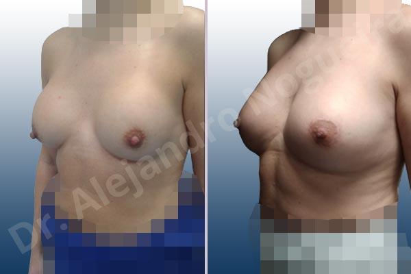 Contractura capsular de implantes mamarios,Calcificación de la cápsula de los implantes mamarios,Malposición de implantes mamarios desplazados,Implantes mamarios excesivamente altos,Visibilidad palpabilidad de implantes mamarios,Implantes mamarios rotos,Pechos bizcos,Implantes mamarios bizcos,Pechos vacíos,Pechos laterales,Pechos pequeños,Escote ancho de implantes de pechos excesivamente separados,Escote ancho de pechos excesivamente separados,Implantes mamarios demasiado estrechos,Forma anatómica,Capsulectomía,Incisión circumareolar,Bolsillo en plano subfascial - photo 3