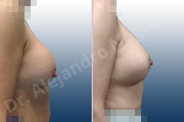 Contractura capsular de implantes mamarios,Calcificación de la cápsula de los implantes mamarios,Malposición de implantes mamarios desplazados,Implantes mamarios excesivamente altos,Visibilidad palpabilidad de implantes mamarios,Implantes mamarios rotos,Pechos bizcos,Implantes mamarios bizcos,Pechos vacíos,Pechos laterales,Pechos pequeños,Escote ancho de implantes de pechos excesivamente separados,Escote ancho de pechos excesivamente separados,Implantes mamarios demasiado estrechos,Forma anatómica,Capsulectomía,Incisión circumareolar,Bolsillo en plano subfascial - photo 4