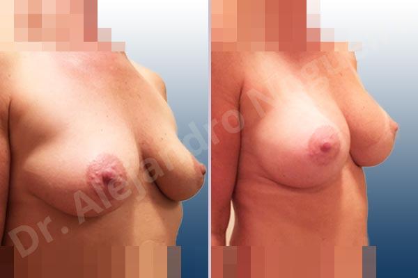 Pechos asimétricos,Pechos vacíos,Pechos ligeramente caídos descolgados,Pechos pequeños,Forma anatómica,Incisión hemiperiareolar inferior,Bolsillo en plano subfascial - photo 5