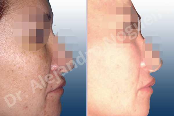 Labios pequeños,Relleno con colágeno dérmico autólogo de labio superior - photo 2