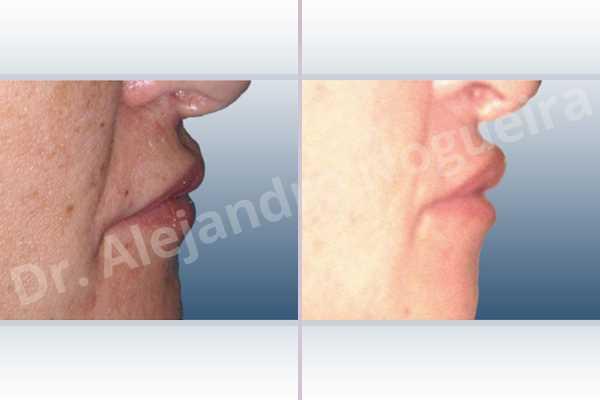 Labios pequeños,Relleno con colágeno dérmico autólogo de labio superior - photo 4
