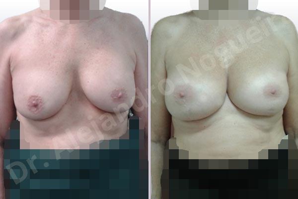 Pechos asimétricos,Malposición de implantes mamarios desplazados,Movimiento excesivo de implantes mamarios,Implantes mamarios volteados,Visibilidad palpabilidad de implantes mamarios,Implantes mamarios rotos,Pechos vacíos,Pechos moderadamente caídos descolgados,Pechos pequeños,Escote ancho de implantes de pechos excesivamente separados,Implantes mamarios demasiado estrechos,Pechos anchos,Forma anatómica,Capsulectomía,Incisión a medida,Bolsillo en plano subfascial - photo 1