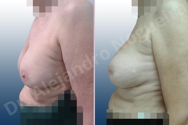 Pechos asimétricos,Malposición de implantes mamarios desplazados,Movimiento excesivo de implantes mamarios,Implantes mamarios volteados,Visibilidad palpabilidad de implantes mamarios,Implantes mamarios rotos,Pechos vacíos,Pechos moderadamente caídos descolgados,Pechos pequeños,Escote ancho de implantes de pechos excesivamente separados,Implantes mamarios demasiado estrechos,Pechos anchos,Forma anatómica,Capsulectomía,Incisión a medida,Bolsillo en plano subfascial - photo 2
