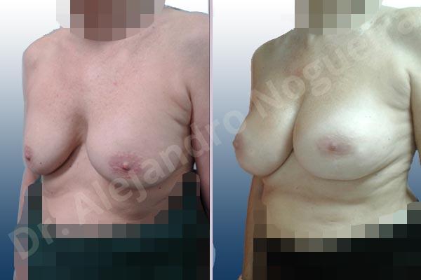 Pechos asimétricos,Malposición de implantes mamarios desplazados,Movimiento excesivo de implantes mamarios,Implantes mamarios volteados,Visibilidad palpabilidad de implantes mamarios,Implantes mamarios rotos,Pechos vacíos,Pechos moderadamente caídos descolgados,Pechos pequeños,Escote ancho de implantes de pechos excesivamente separados,Implantes mamarios demasiado estrechos,Pechos anchos,Forma anatómica,Capsulectomía,Incisión a medida,Bolsillo en plano subfascial - photo 3