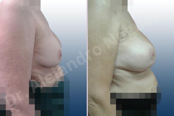 Pechos asimétricos,Malposición de implantes mamarios desplazados,Movimiento excesivo de implantes mamarios,Implantes mamarios volteados,Visibilidad palpabilidad de implantes mamarios,Implantes mamarios rotos,Pechos vacíos,Pechos moderadamente caídos descolgados,Pechos pequeños,Escote ancho de implantes de pechos excesivamente separados,Implantes mamarios demasiado estrechos,Pechos anchos,Forma anatómica,Capsulectomía,Incisión a medida,Bolsillo en plano subfascial - photo 4