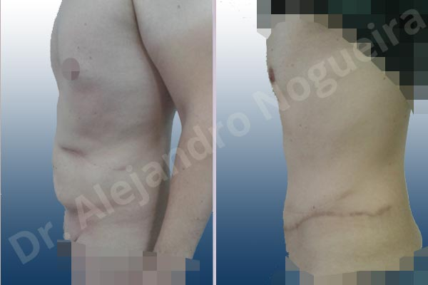 Abdomen descolgado,Abdominoplastia estándar - photo 2