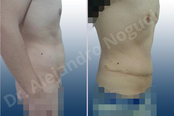Abdomen descolgado,Abdominoplastia estándar - photo 4