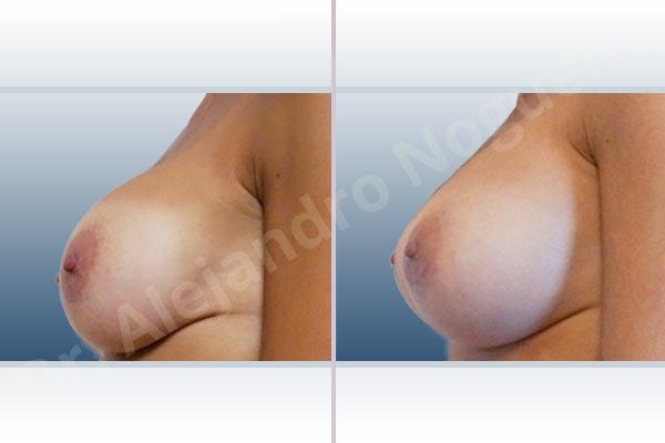 Contractura capsular de implantes mamarios,Calcificación de la cápsula de los implantes mamarios,Tienda de escote de implantes mamarios,Visibilidad palpabilidad de implantes mamarios,Implantes mamarios rotos,Pechos vacíos,Pechos ligeramente caídos descolgados,Pechos pequeños,Escote ancho de implantes de pechos excesivamente separados,Implantes mamarios demasiado estrechos,Forma anatómica,Capsulectomía,Tamaño extra grande,Incisión hemiperiareolar inferior,Bolsillo en plano subfascial - photo 2