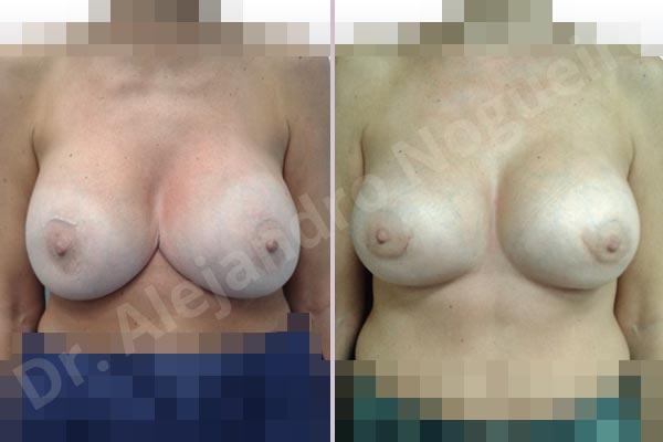 Pechos asimétricos,Tienda de escote de implantes mamarios,Malposición de implantes mamarios desplazados,Movimiento excesivo de implantes mamarios,Deslizamiento lateral de implantes mamarios,Ondulaciones o rippling de implantes mamarios,Implantes mamarios excesivamente laterales,Unimama por sinmastia de implantes mamarios,Visibilidad palpabilidad de implantes mamarios,Implantes mamarios bizcos,Pechos vacíos,Pechos levemente caídos descolgados,Pechos moderadamente caídos descolgados,Pechos pequeños,Implantes mamarios demasiado anchos,Efecto en cascada de agua de implantes mamarios,Pechos anchos,Forma anatómica,Capsulectomía,Capsulorrafia sujetador interno,Incisión hemiperiareolar inferior,Bolsillo en plano subfascial - photo 1